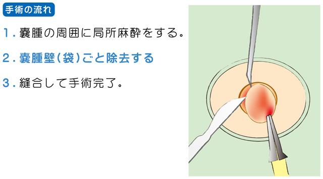 粉瘤(アテローム)の治療・手術