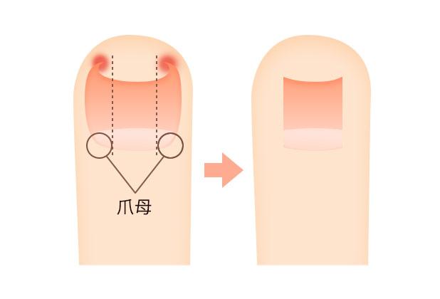 巻き爪・陥入爪の治療方法